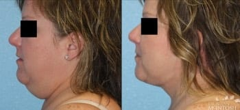 dr-bryan-mcinotsh-before-and-after-thumbnail