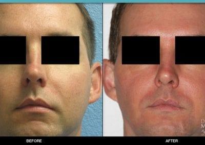 Palomar 1540 Laser Skin Resurfacing