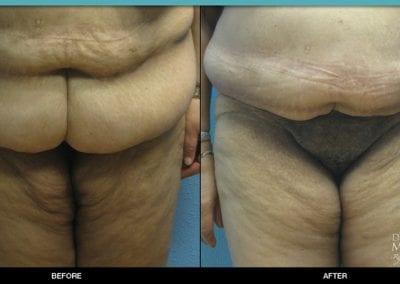 Panniculectomy