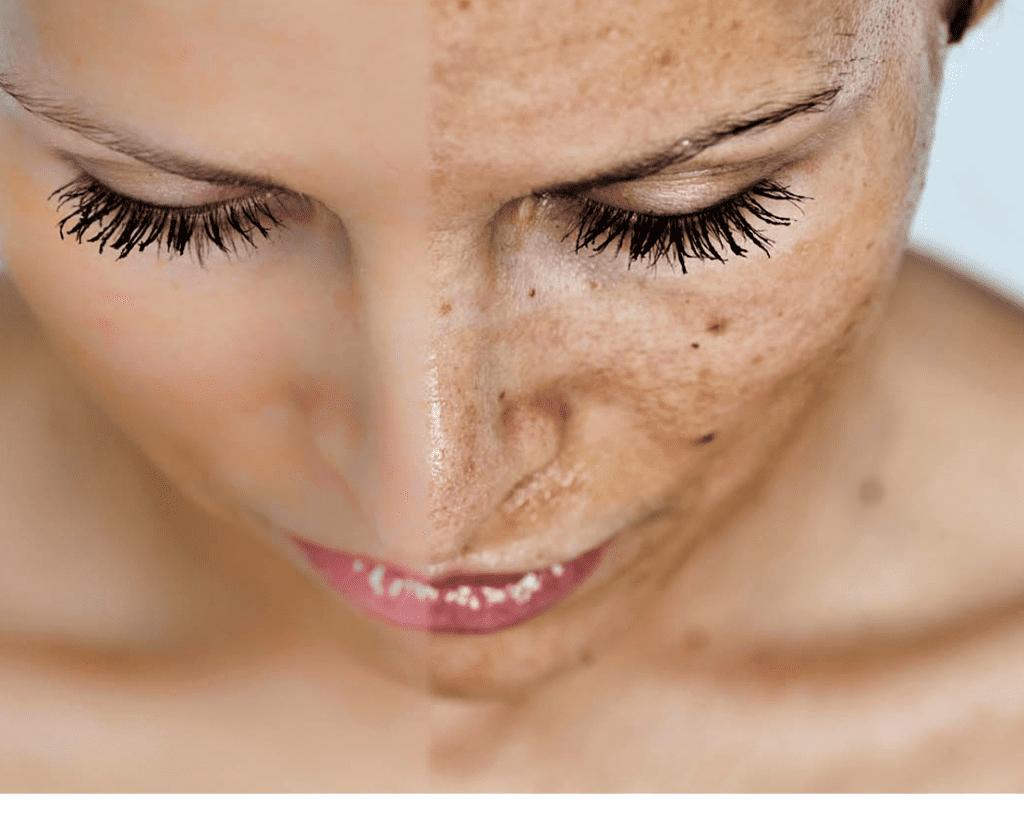 Photorejuvenation-IPL-Treatment-for-visible-sun-damaged-skin