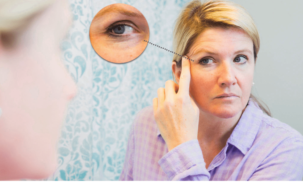Brow-Lift-Or-Eyelid-Surgery-Do-not-Fall-Prey-To-An-Inaccurate-Diagnosis
